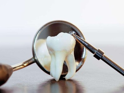义齿CNC 研磨粉尘净化方案